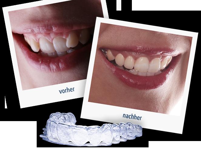 Zahnkorrektur durch die transparente Zahnschiene von In-Line in Oldenburg - der Vergleich