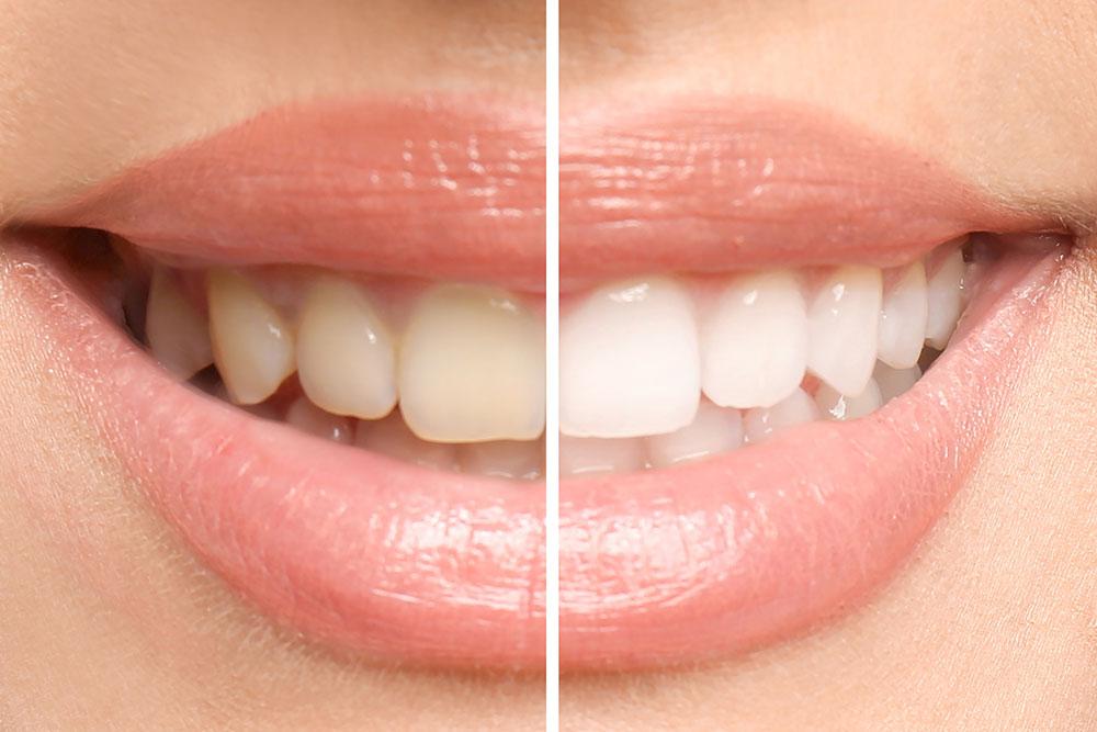 Prophylaxe beim Zahnarzt Oldenburg