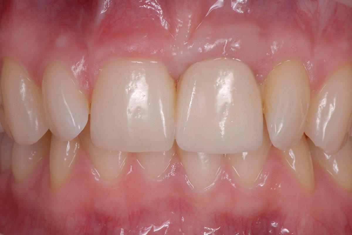 Implantate beim Zahnarzt Oldenburg